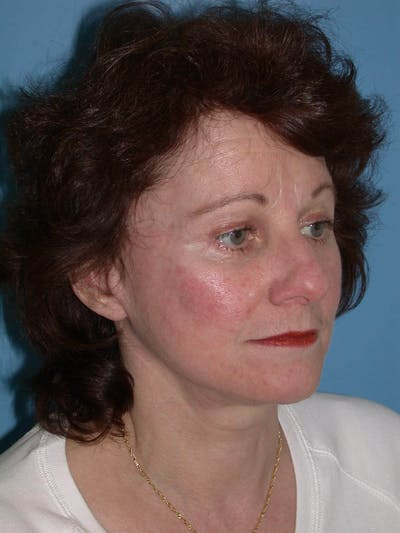 Facelift Gallery - Patient 4757008 - Image 1