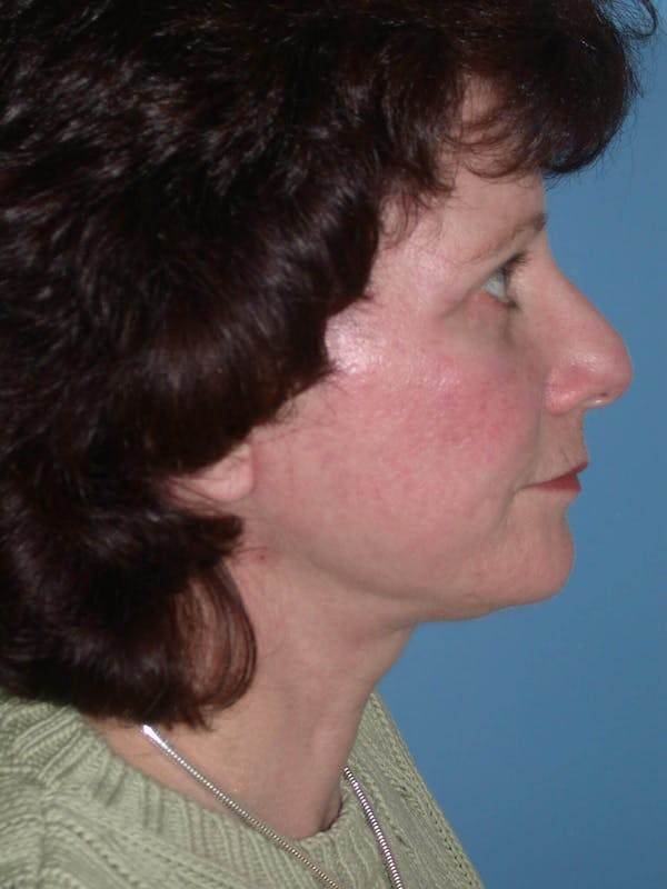 Facelift Gallery - Patient 4757008 - Image 4