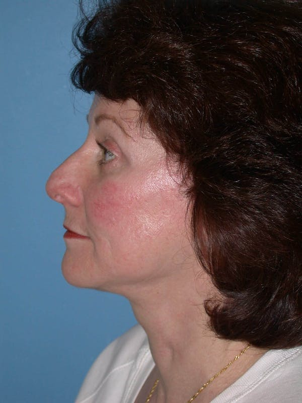 Facelift Gallery - Patient 4757008 - Image 5