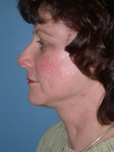 Facelift Gallery - Patient 4757008 - Image 6