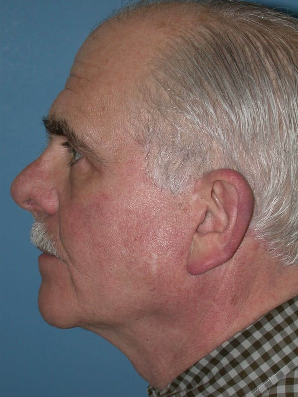 Facelift Gallery - Patient 4757012 - Image 4