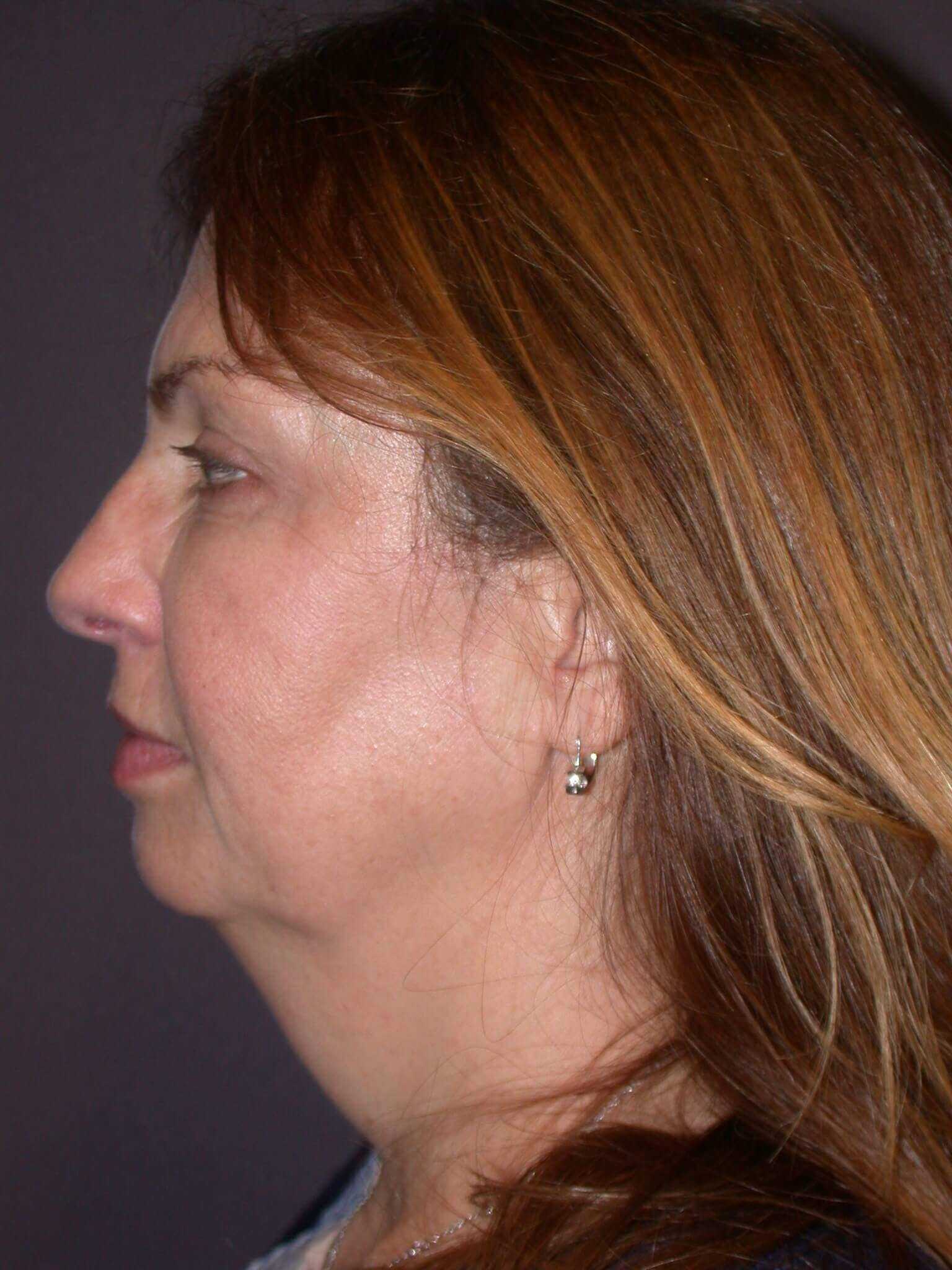 Before & After a neck lift in San Francisco