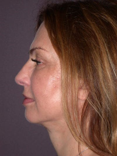 Neck Lift Gallery - Patient 4757142 - Image 2