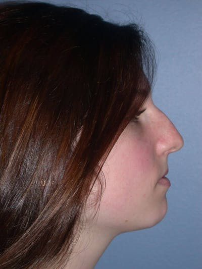 Rhinoplasty Gallery - Patient 4757144 - Image 1