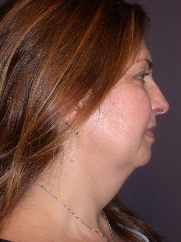 Neck Lift Gallery - Patient 4757142 - Image 3