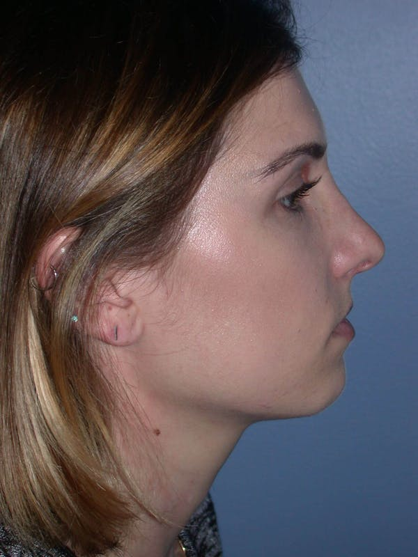Before & After Rhinoplasty San Francisco