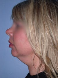 Neck Lift Gallery - Patient 4757148 - Image 1