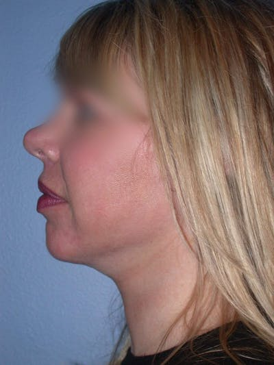 Neck Lift Gallery - Patient 4757148 - Image 2