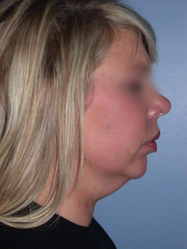 Neck Lift Gallery - Patient 4757148 - Image 3