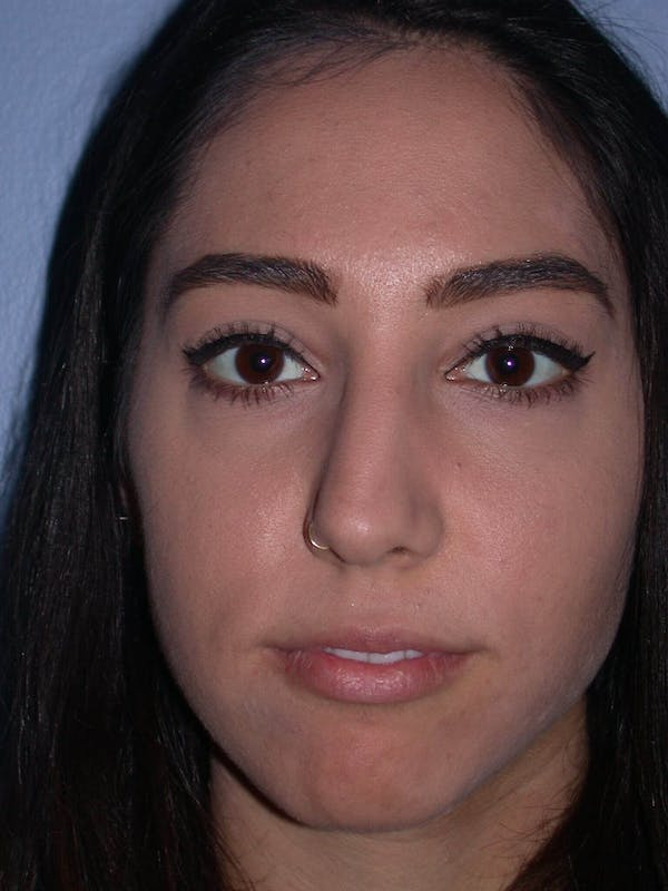 Rhinoplasty Gallery - Patient 4757150 - Image 1