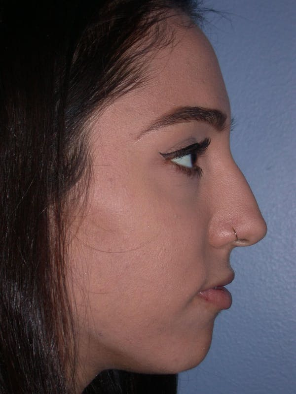 Rhinoplasty Gallery - Patient 4757150 - Image 3