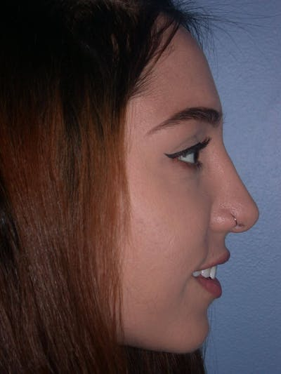 Rhinoplasty Gallery - Patient 4757150 - Image 4