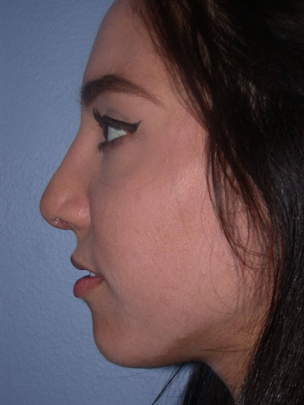 Rhinoplasty Gallery - Patient 4757150 - Image 5