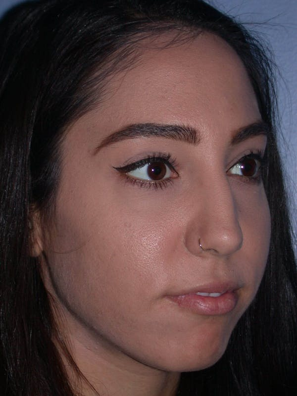 Rhinoplasty Gallery - Patient 4757150 - Image 7