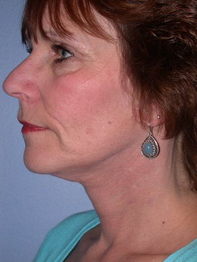 Neck Lift Gallery - Patient 4757151 - Image 2