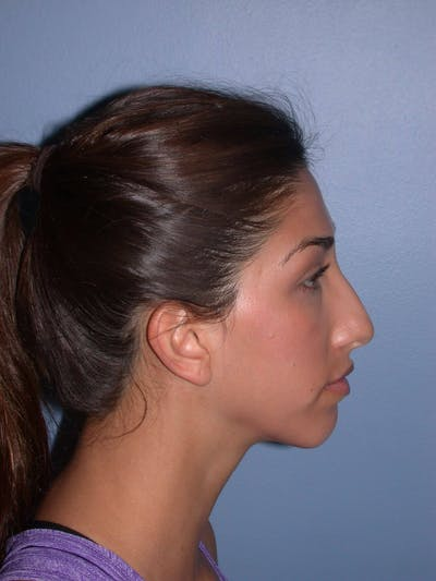 Rhinoplasty Gallery - Patient 4757154 - Image 1