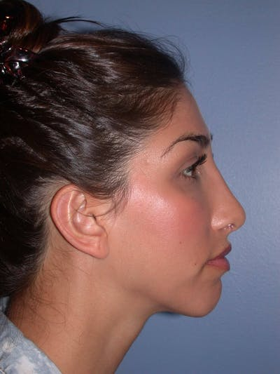 Rhinoplasty Gallery - Patient 4757154 - Image 2