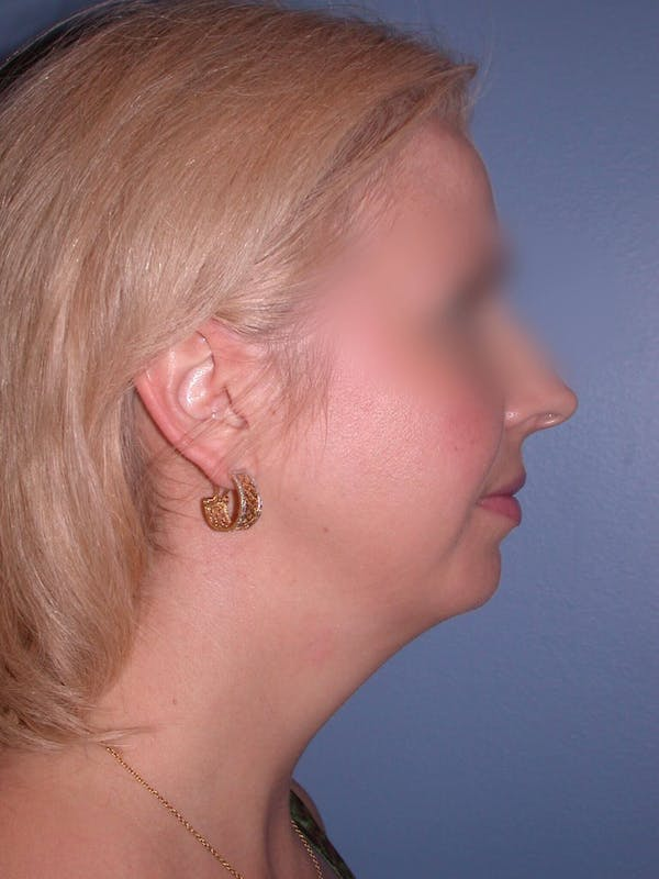 Neck Lift Gallery - Patient 4757158 - Image 3