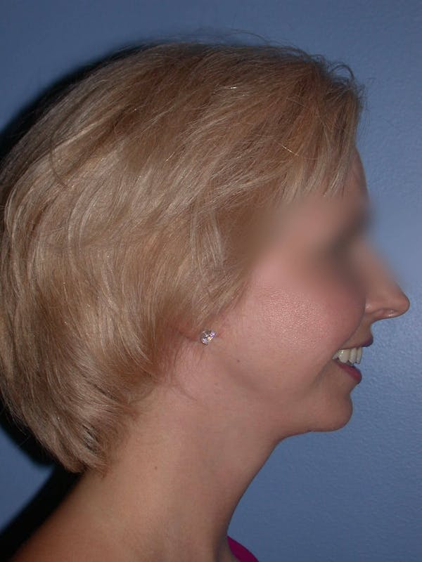 Neck Lift Gallery - Patient 4757158 - Image 4