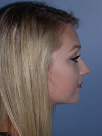 Rhinoplasty Gallery - Patient 4757159 - Image 1