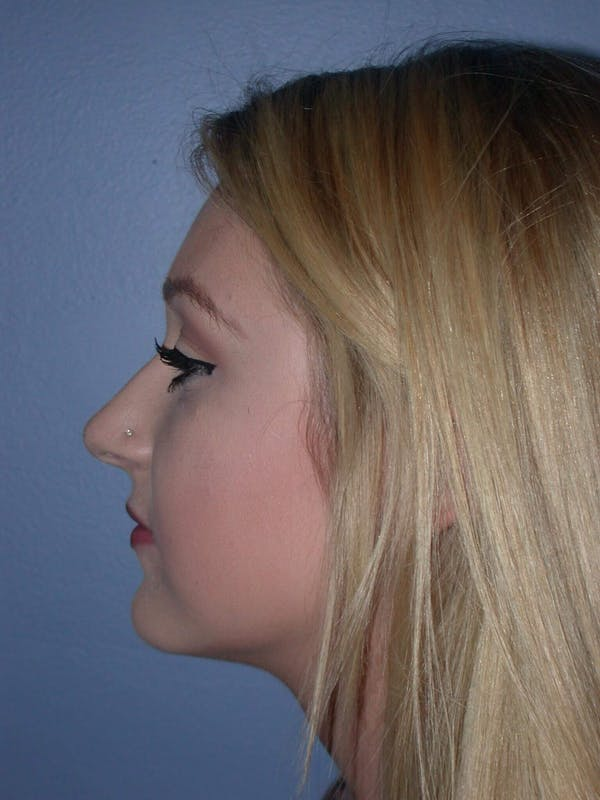 Rhinoplasty Gallery - Patient 4757159 - Image 3
