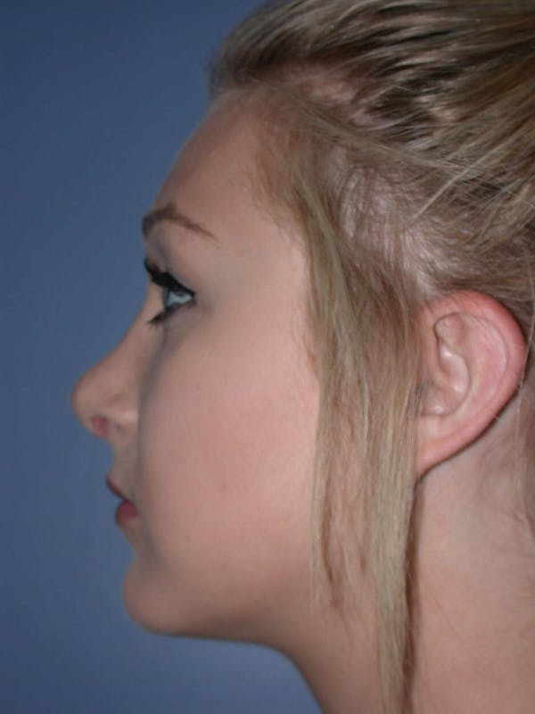 Rhinoplasty Gallery - Patient 4757159 - Image 4