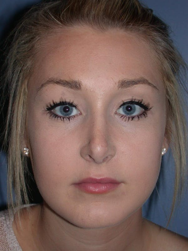 Rhinoplasty Gallery - Patient 4757159 - Image 6