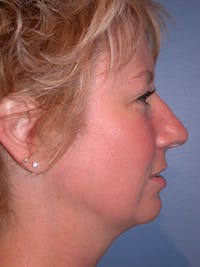 Rhinoplasty Gallery - Patient 4757161 - Image 1