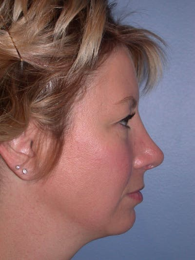 Rhinoplasty Gallery - Patient 4757161 - Image 2