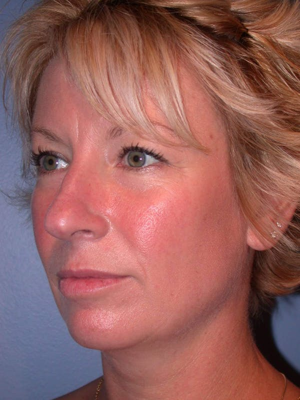 Rhinoplasty Gallery - Patient 4757161 - Image 3