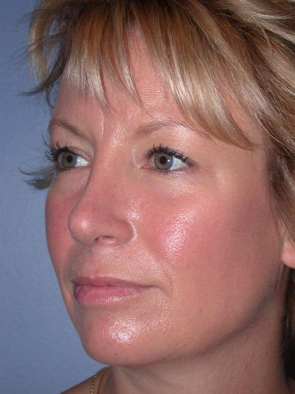Rhinoplasty Gallery - Patient 4757161 - Image 4