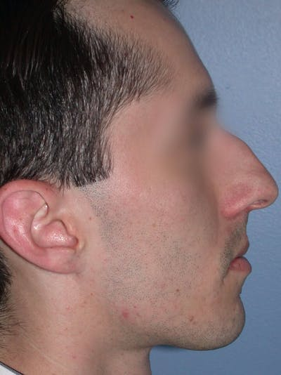 Rhinoplasty Gallery - Patient 4757165 - Image 1