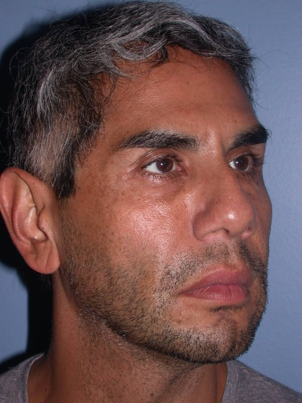 Facial Fat Grafting Gallery - Patient 4757168 - Image 3