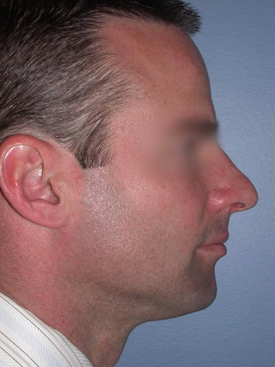 Rhinoplasty Gallery - Patient 4757171 - Image 1