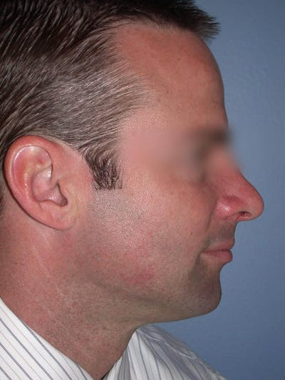 Rhinoplasty Gallery - Patient 4757171 - Image 2
