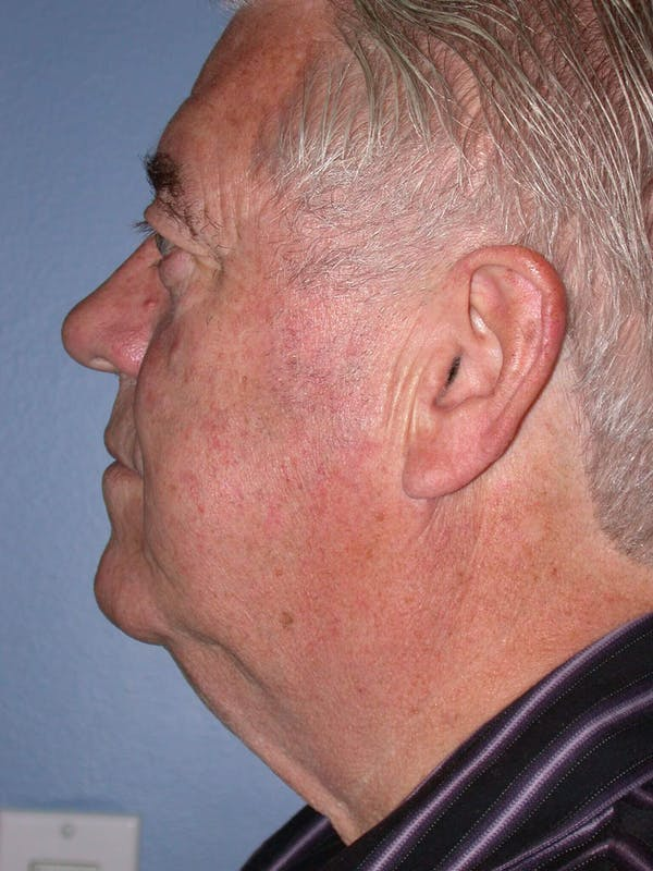 Neck Lift Gallery - Patient 4757172 - Image 3