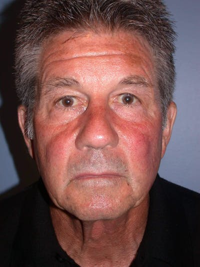 Facial Fat Grafting Gallery - Patient 4757175 - Image 1