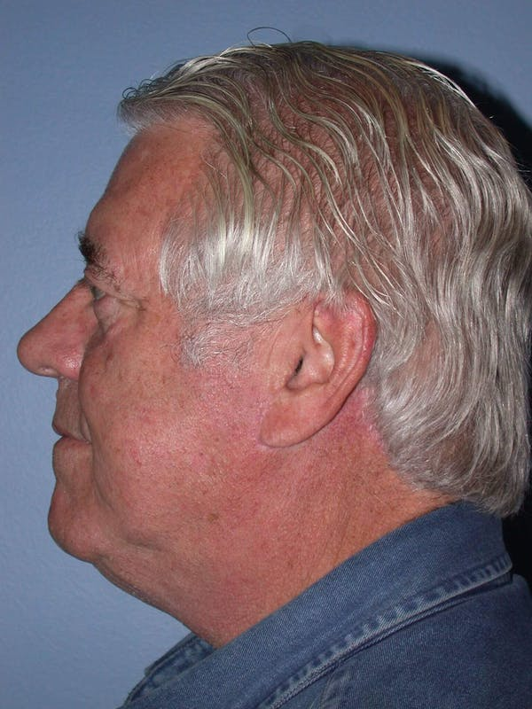 Neck Lift Gallery - Patient 4757172 - Image 4