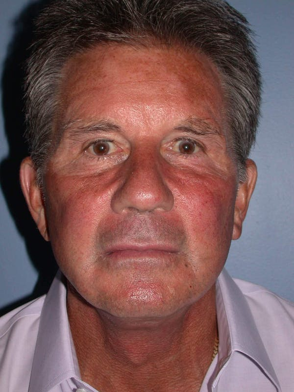 Facial Fat Grafting Gallery - Patient 4757175 - Image 2