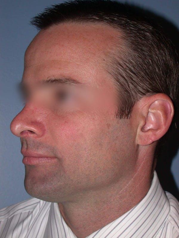 Rhinoplasty Gallery - Patient 4757171 - Image 6
