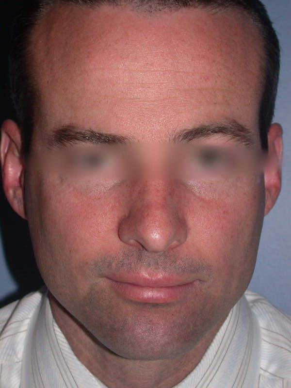 Rhinoplasty Gallery - Patient 4757171 - Image 7