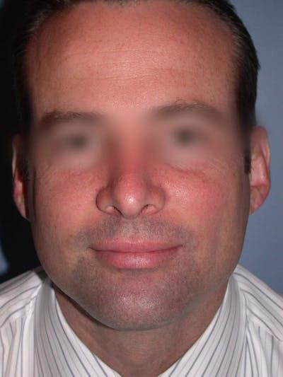 Rhinoplasty Gallery - Patient 4757171 - Image 8