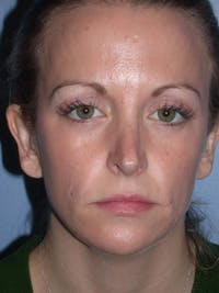 Rhinoplasty Gallery - Patient 4757180 - Image 1