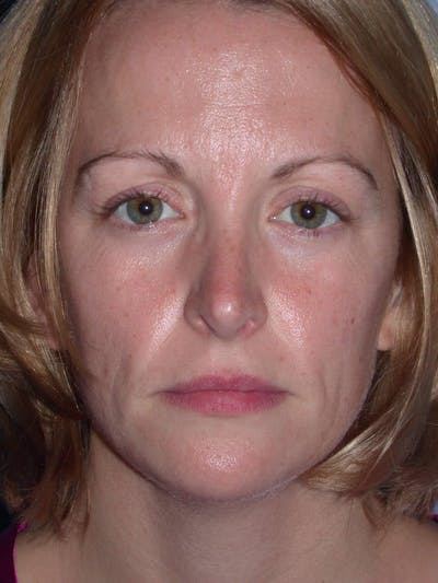 Rhinoplasty Gallery - Patient 4757180 - Image 2