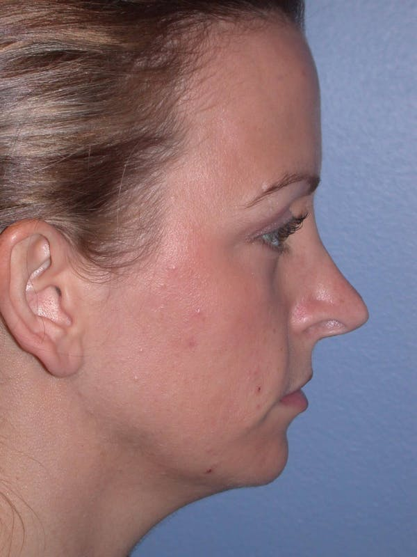 Rhinoplasty Gallery - Patient 4757180 - Image 3