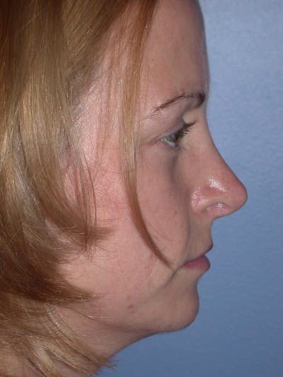Rhinoplasty Gallery - Patient 4757180 - Image 4
