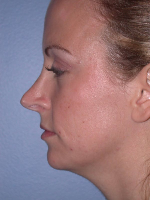 Rhinoplasty Gallery - Patient 4757180 - Image 5