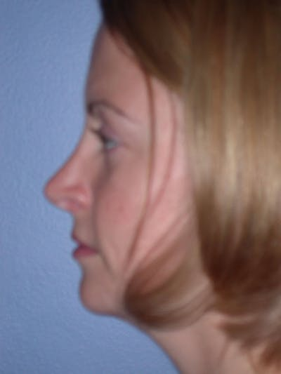 Rhinoplasty Gallery - Patient 4757180 - Image 6