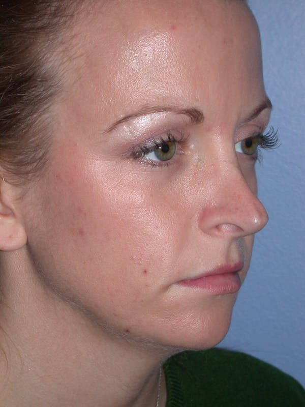 Rhinoplasty Gallery - Patient 4757180 - Image 7