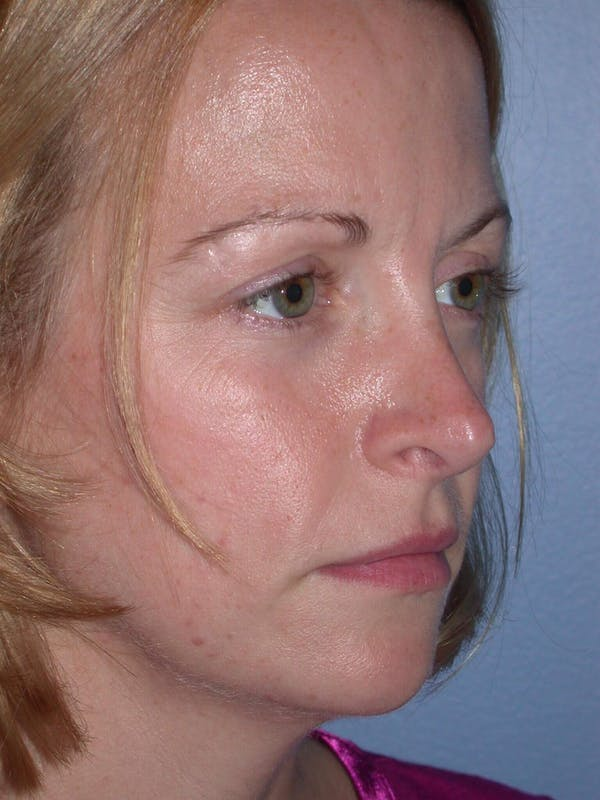 Rhinoplasty Gallery - Patient 4757180 - Image 8